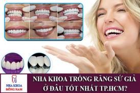 nha khoa trồng răng sứ giả ở đâu tốt nhất tp.hcm?