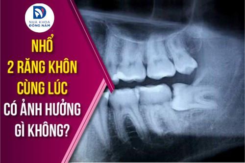 nhổ 2 răng khôn cùng lúc có ảnh hưởng gì không