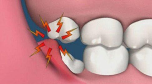 nhổ 2 răng khôn cùng lúc có ảnh hưởng gì không 2