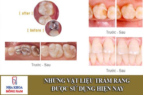 những vật liệu trám răng được sử dụng hiện nay