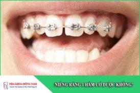 niềng răng 1 hàm có được không