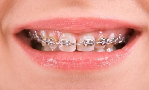 niềng răng hàm trên