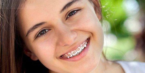 niềng răng 1 hàm có được không 1