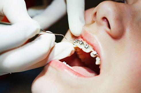 niềng răng 1 hàm có được không 2