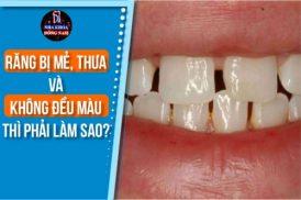 răng bị mẻ thưa và không đều màu thì phải làm sao