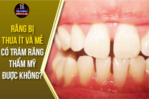 răng bị thưa ít và mẻ có trám răng thẩm mỹ được không