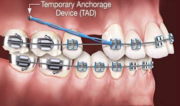 răng cửa mọc lộn xộn và xấu xí thì điều trị như thế nào 1