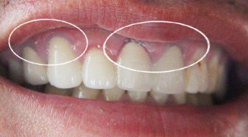 răng cửa mọc lộn xộn và xấu xí thì điều trị như thế nào 2