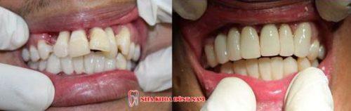răng cửa mọc lộn xộn và xấu xí thì điều trị như thế nào 3