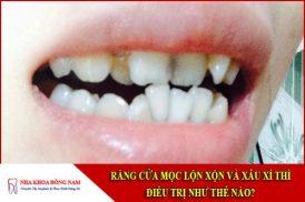 răng cửa mọc lộn xộn và xấu xí thì điều trị như thế nào