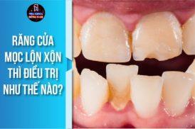 Răng cửa mọc lộn xộn thì điều trị như thế nào