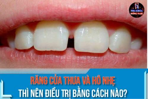 răng cửa thưa và hô nhẹ thì nên điều trị bằng cách nào