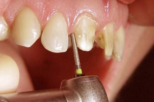 răng hàm dưới lộn xộn thì phải điều trị bằng phương pháp nào 3