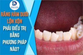 răng hàm dưới lộn xộn thì phải điều trị bằng phương pháp nào