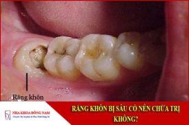 răng khôn bị sâu có nên chữa trị không