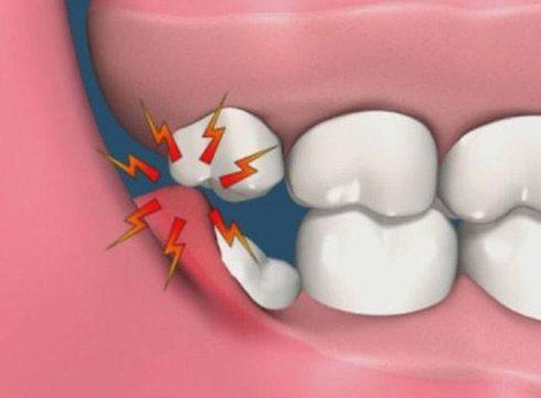 răng khôn bị sâu có nên chữa trị 1