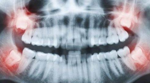 răng khôn mọc trong bao lâu 1