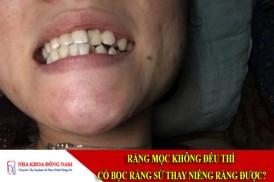 răng mọc không đều thì có bọc răng sứ thay niềng răng được
