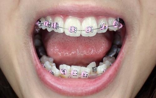 răng mọc không đều thì có bọc răng sứ thay niềng răng được không 1
