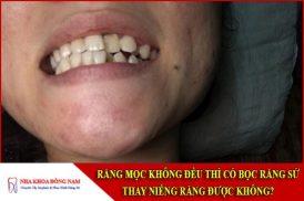 răng mọc không đều thì có bọc răng sứ thay niềng răng được không