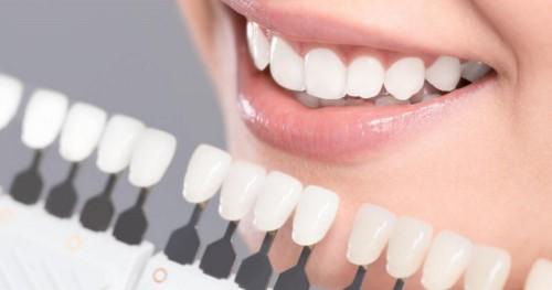 răng mọc không đều thì có bọc răng sứ thay niềng răng được không 3