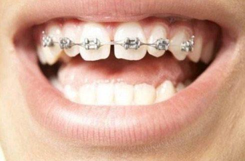 răng mọc không đều và bị hô thì niềng răng hay bọc sứ 1