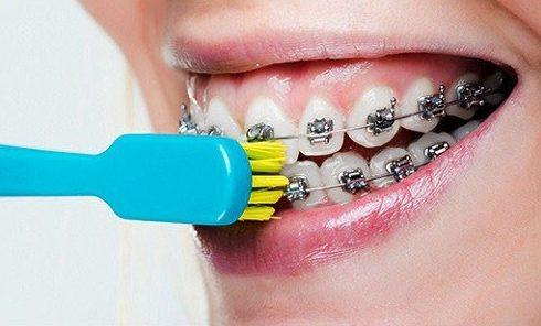 răng mọc không đều và bị hô thì niềng răng hay bọc sứ 2