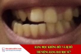 răng mọc không đều và bị hô thì niềng răng hay bọc sứ?