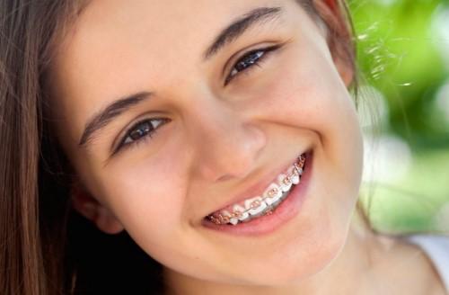 răng mọc lệch vào trong nên niềng răng hay bọc sứ 1