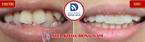 răng mọc lệch vào trong nên niềng răng hay bọc sứ 2