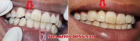 răng mọc lệch vào trong nên niềng răng hay bọc sứ 3