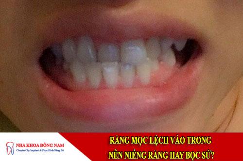 răng mọc lệch vào trong nên niềng răng hay bọc sứ