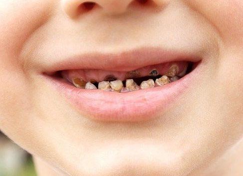 răng sữa bị gãy có ảnh hưởng gì không 2