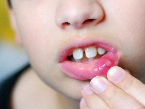 răng sữa bị gãy có ảnh hưởng gì không 3
