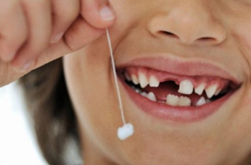 răng sữa bị gãy có ảnh hưởng gì không 4