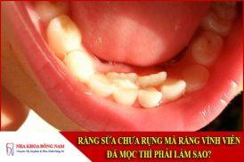 răng sữa chưa rụng mà răng vĩnh viễn đã mọc thì phải làm sao