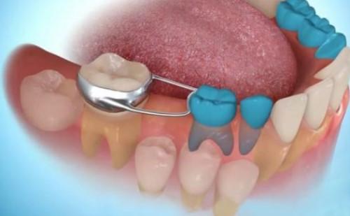 dụng cụ giữ khoảng cho răng