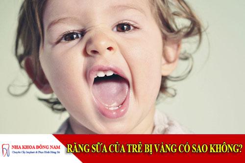 răng sữa của trẻ bị vàng có sao không