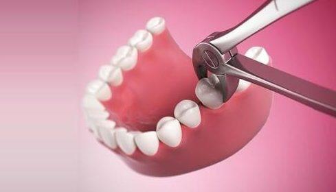 sau khi nhổ răng bị chảy máu hoài thì phải làm sao 1