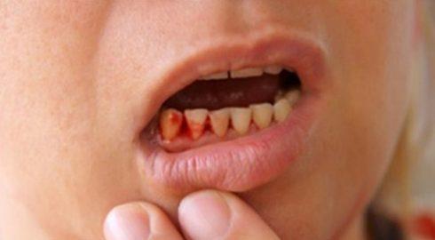 sau khi nhổ răng bị chảy máu hoài thì phải làm sao 2