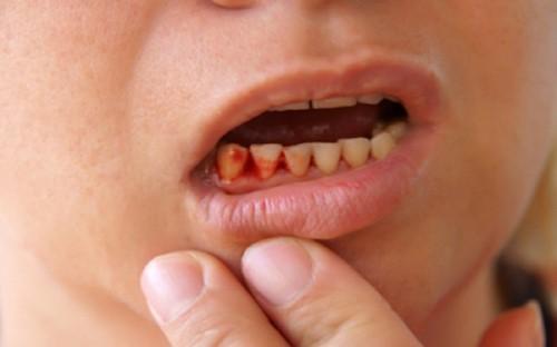 chảy máu răng