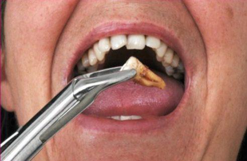 sau khi nhổ răng bị sưng mặt thì phải làm sao 1