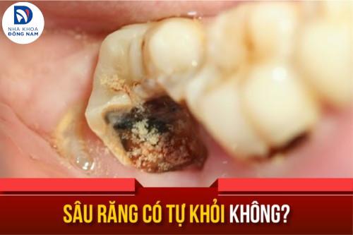 Sâu răng có tự khỏi không