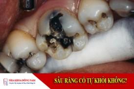 sâu răng có tự khỏi không?