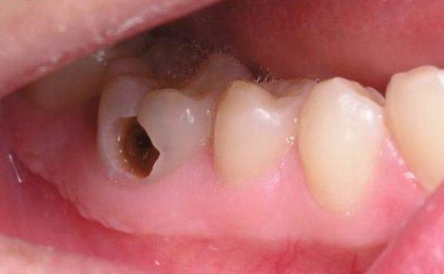 sâu răng có tự khỏi không 4