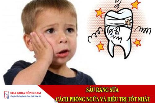 sâu răng sữa - cách phòng ngừa và điều trị tốt nhất
