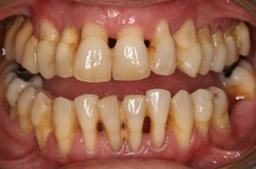 viêm nướu gây mất răng