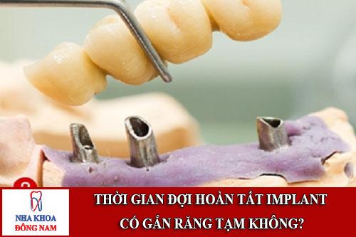 thời gian đợi hoàn tất implant có gắn răng tạm không?