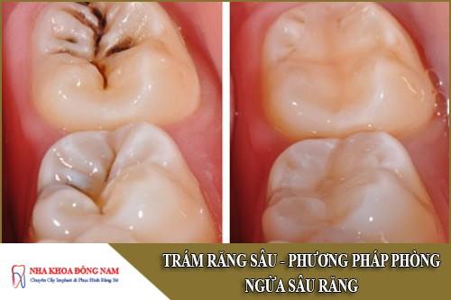 trám răng sâu - phương pháp phòng ngừa sâu răng