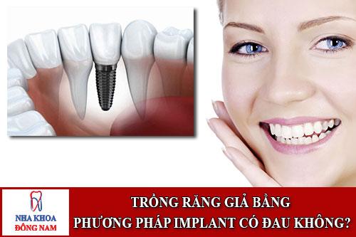 trồng răng giả bằng phương pháp implant có đau không?